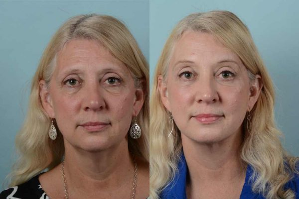 Tighten Sagging Skin Safely with Experts in Mini Face Lift Washington D.C.