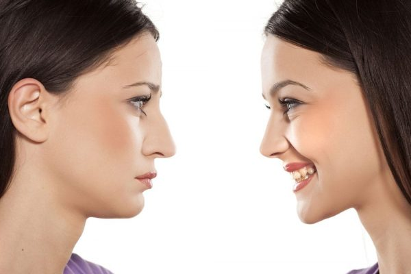 Want to Get a Nose Job Done- Know About the Revision Rhinoplasty Procedure